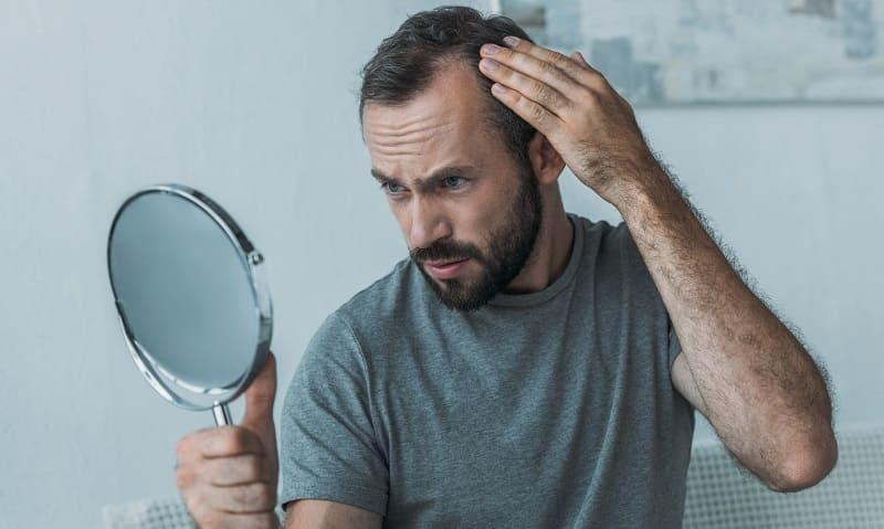 Fragen zum Thema Haare und Haartransplantation