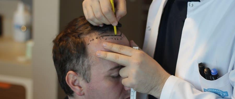 Haarlinie - Begriffe Haartransplantation