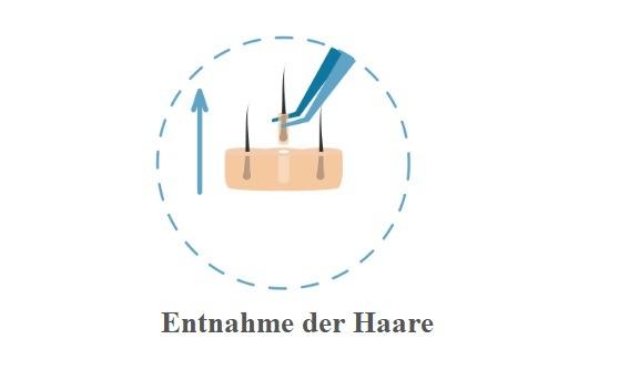 Haartransplantation Donorbereich - Entnahme der Haare