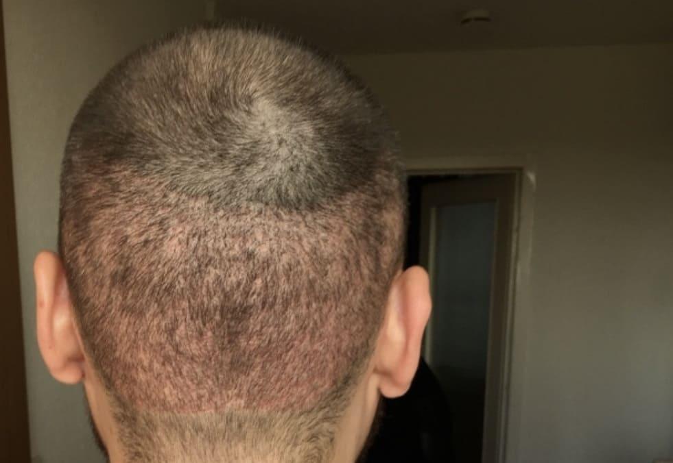 Haartransplantation Donorbereich