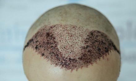 Haartransplantation in Polen als Mittel der Wahl?