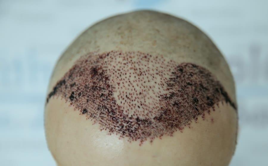 Haartransplantation Polen