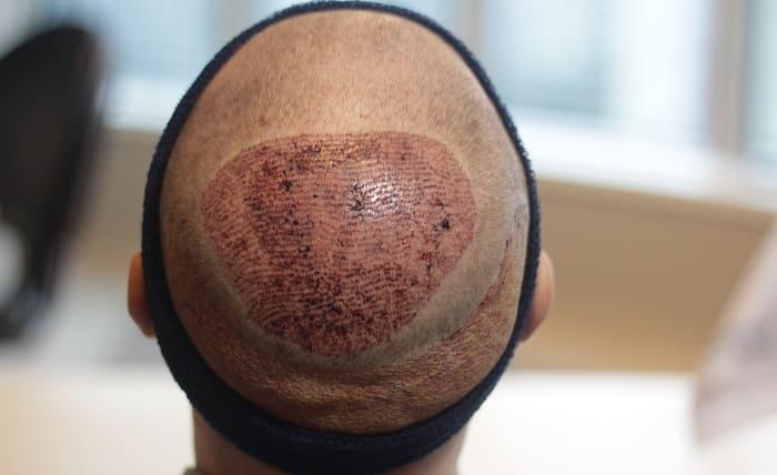 Haartransplantation für Angstpatienten - Heilungsprozess