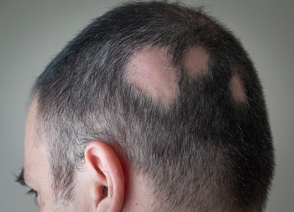 Kreisrunden Haarausfall stoppen