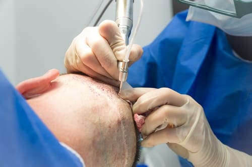 Haartransplantation Narben