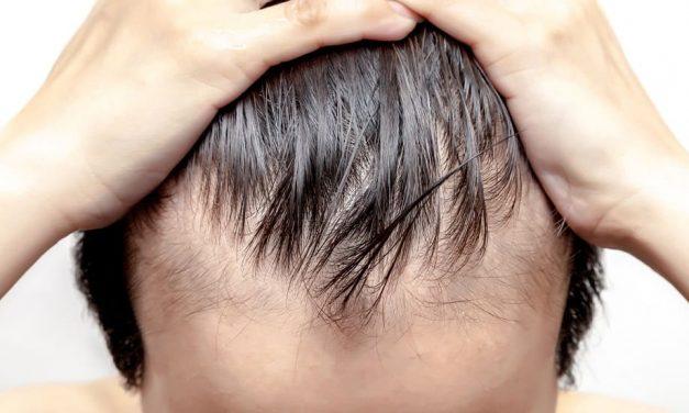 Geheimratsecken und Haarverlust durch Stress – umkehrbar?