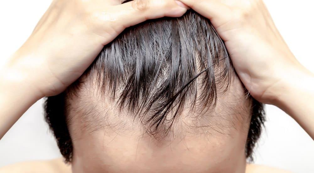 Geheimratsecken und Haarverlust durch Stress