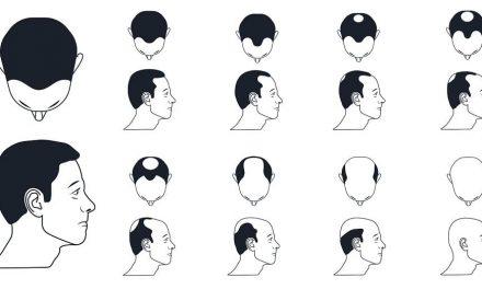 Die Norwood-Hamilton-Skala – Erblich bedingter Haarausfall verläuft nicht zufällig