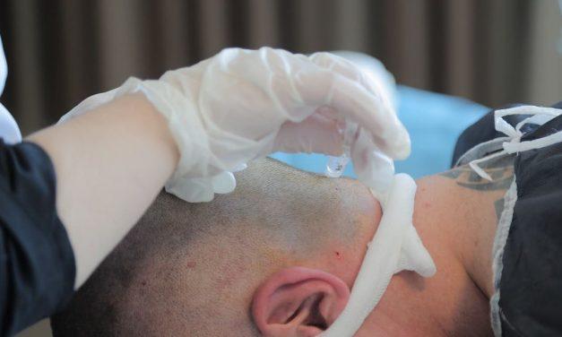 Haartransplantation: Minoxidil anwenden oder nicht?
