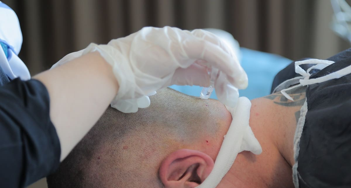 Haartransplantation Minoxidil