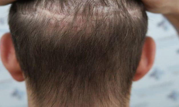 Ermöglicht eine Haartransplantation Narben zu korrigieren?