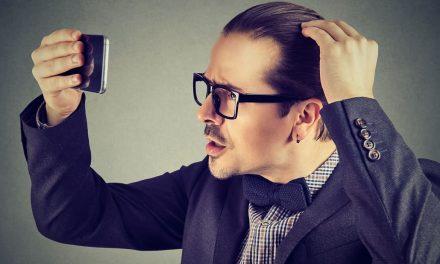 Haartransplantation bei hoher Stirn: Herunterziehen der Haarlinie mit modernsten Methoden