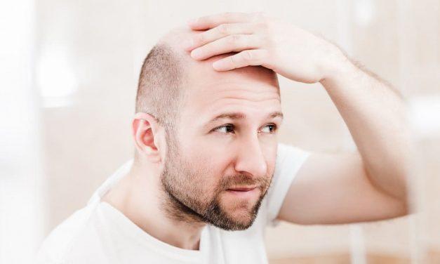 Ist eine Haartransplantation sinnvoll für mich?