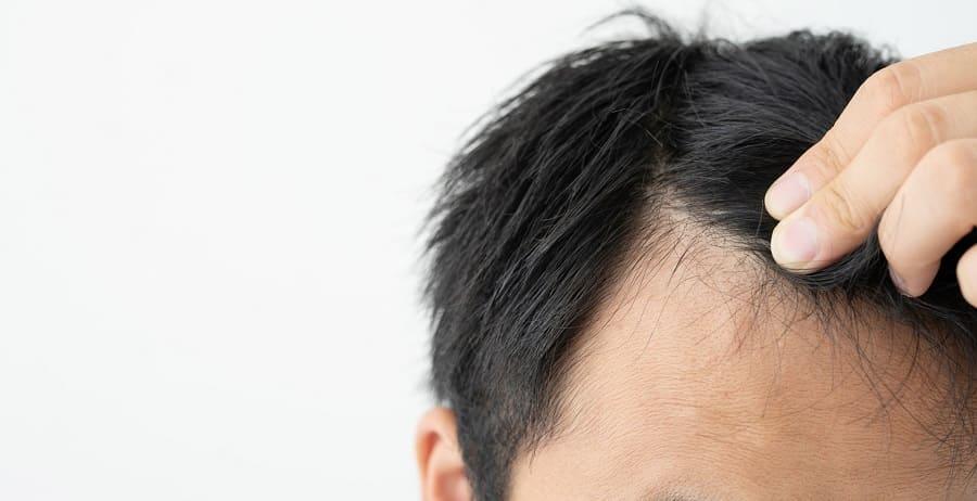 Warum entstehen Geheimratsecken überhaupt durch Stress