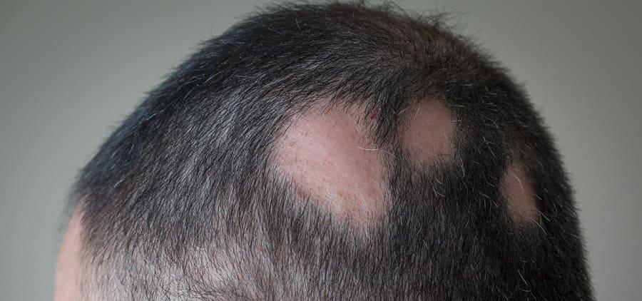 Was sind die Ursachen für kreisrunden Haarausfall
