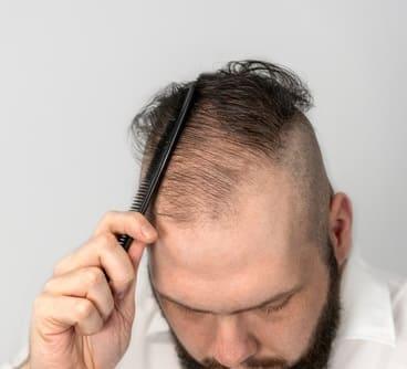 Androgentische Haarausfall Saisonal