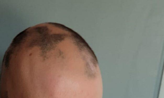 Autoimmunerkrankung und Haarausfall – wenn der Körper sich selbst zerstört
