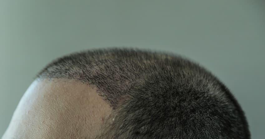 Haartransplantation Mythen