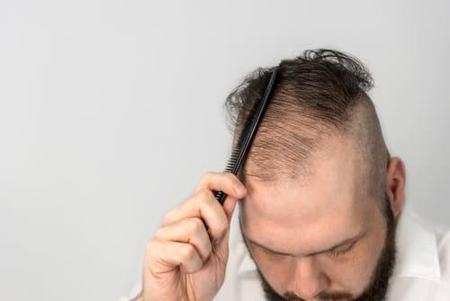 Gründe für den Haarausfall - Haartransplantation als Lösung