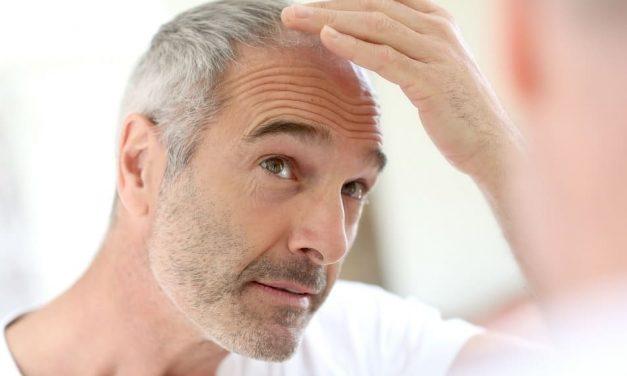 Wann bei Haarausfall Behandlungen unumgänglich sind