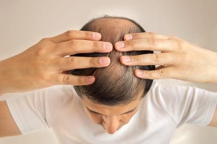 Haarausfall Saisonal - Ursachen