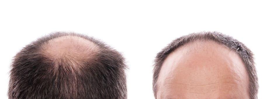 Haarausfall bei Männer