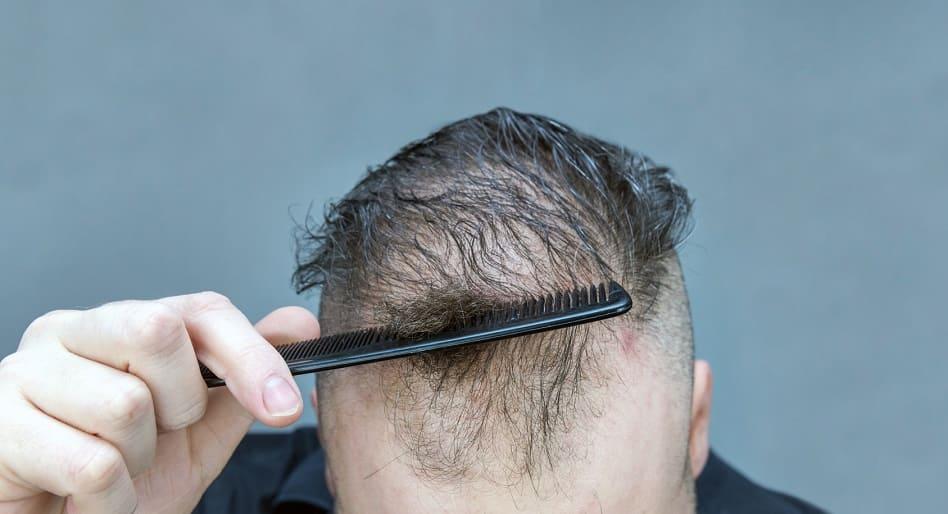 Haarausfall durch Chemotherapie – Nebenwirkung bei einer Krebserkrankung