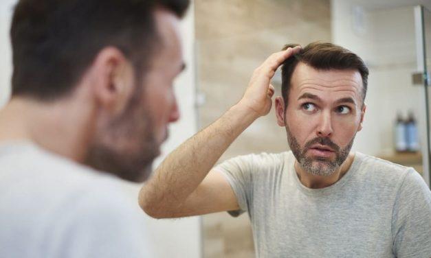 Haartransplantation als Lösung für permanenten Haarausfall?