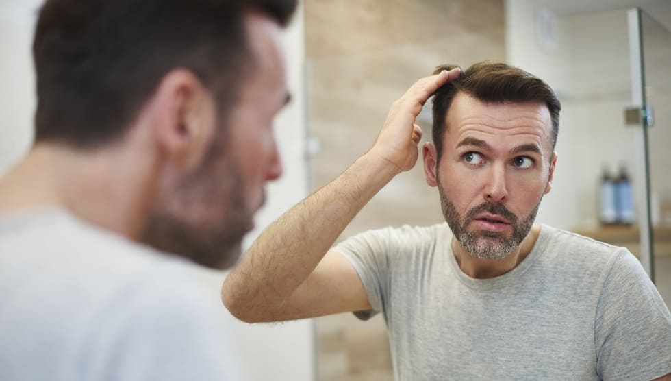 Haartransplantation als Lösung für permanenten Haarausfall