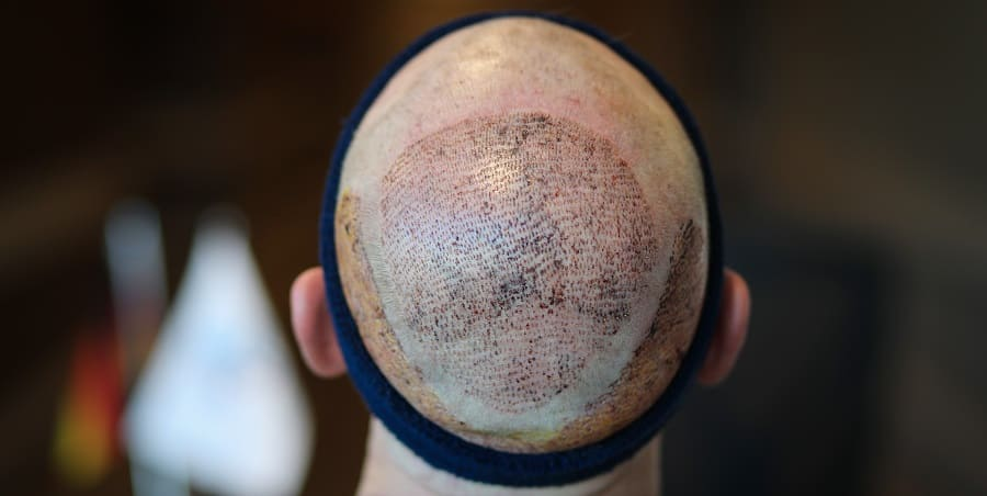 Haartransplantation als Lösung gegen Haarausfall