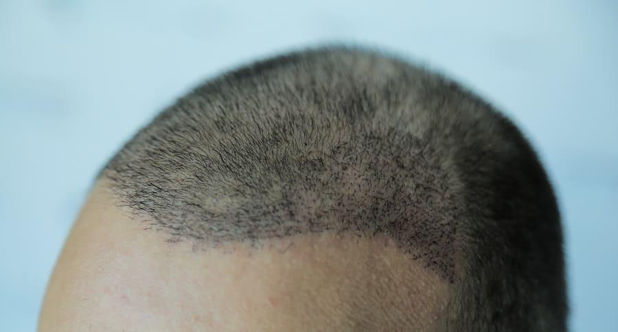Haartransplantation Narben Lösung