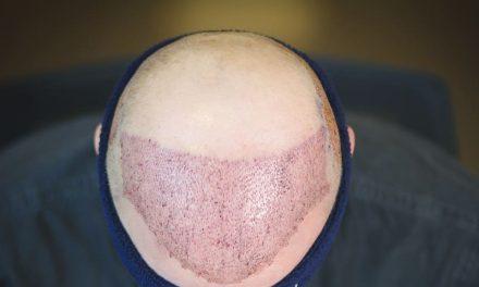 Haartransplantation in Bulgarien – eine finanziell erschwingliche Option?