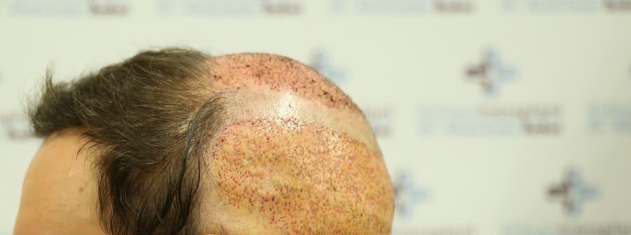 Haartransplantation ohne Narben