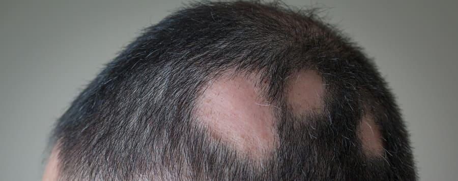 Autoimmunerkrankung Haarausfall - Kreisrunder Haarausfall