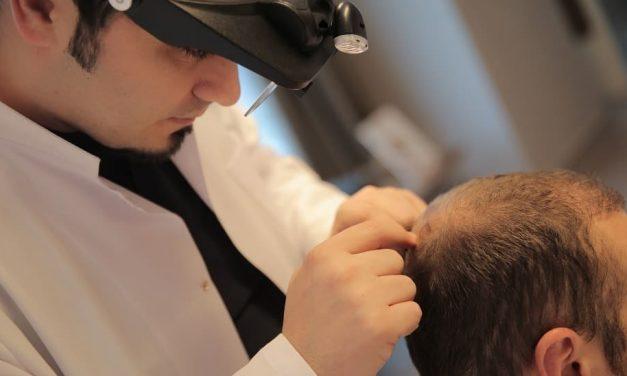 Mythen über die Haartransplantation und was