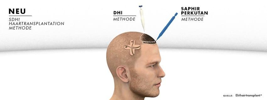 Saphir Perkuran Methode Haartransplantation Haarlinie