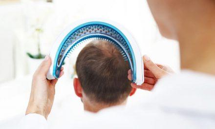 Stammzellentherapie bei Haarausfall: Mit Wachstumsfaktoren gegen Alopezie