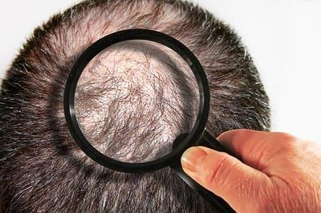 Ursachen - Haarausfall Behandlungen