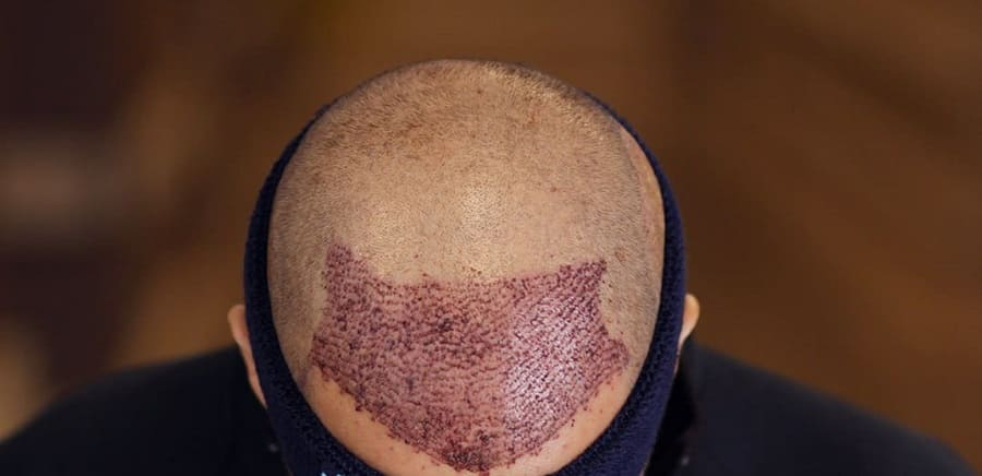 Was veFUE Technik Haartransplantation