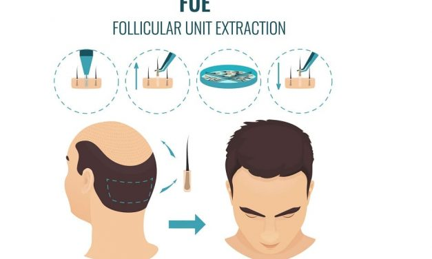 Wie die moderne FUE Technik die Haartransplantation verändert