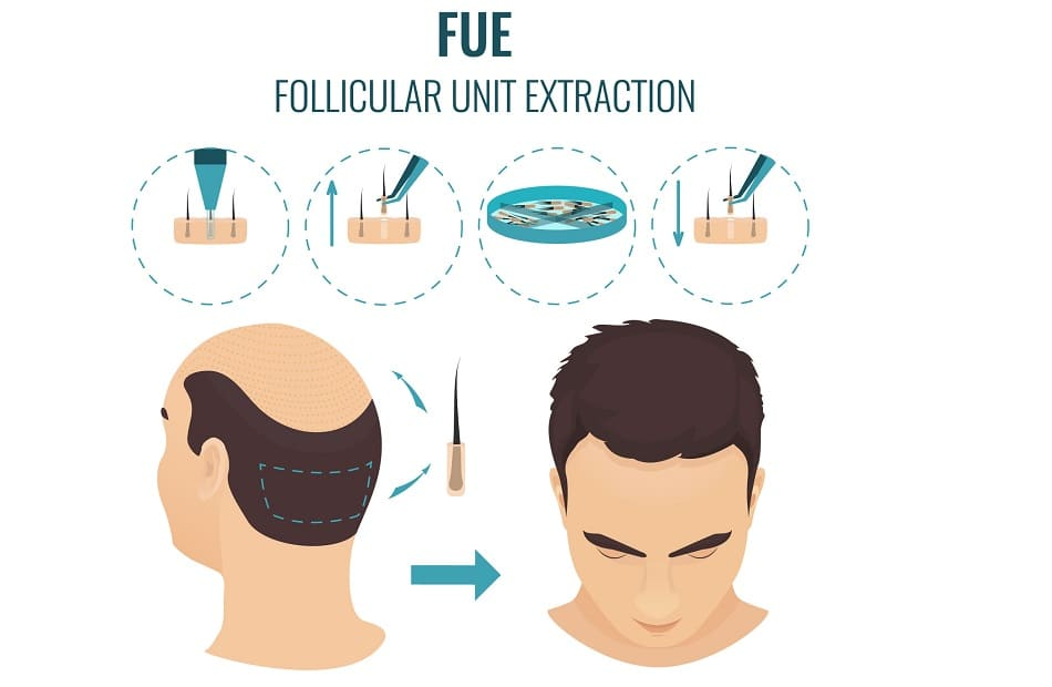 FUE Technik Haartransplantation
