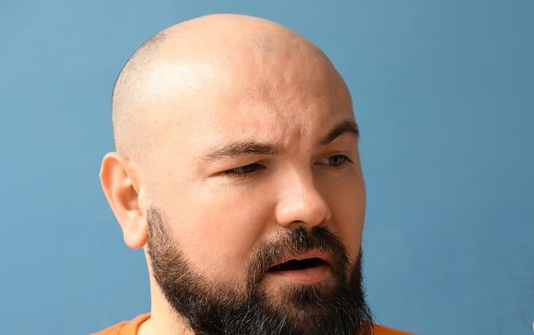 Haarausfall Therapie bei Alopecia areata - ganze Stellen kahl