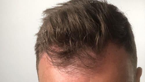 Androgenetische Alopezie Haartransplantation Laser