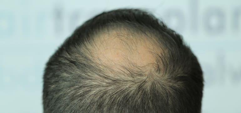 Arten von Haarausfallen