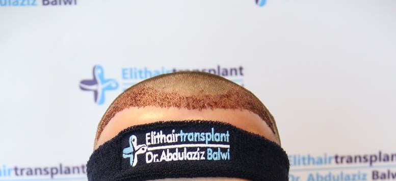 Volles Haar nach Eigenhaartransplantation bei Elithairtransplant