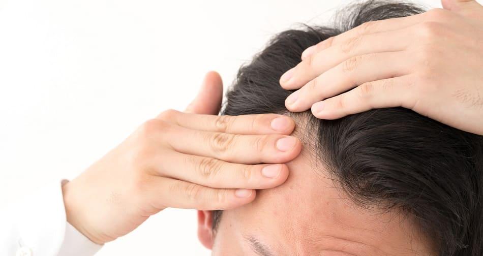 Einseitiger Haarausfall – das steckt wirklich dahinter!