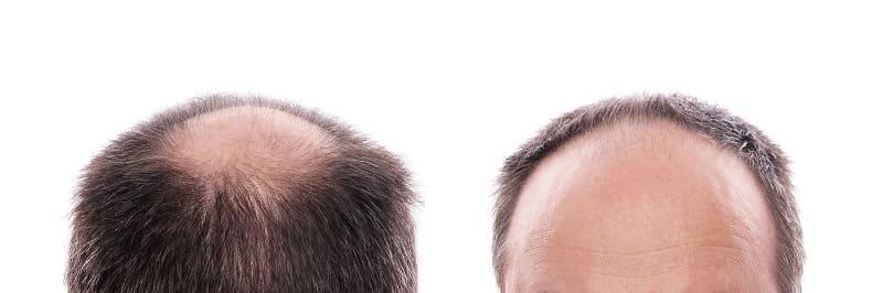 Haarausfall Therapie bei erblich bedingtem Haarausfall