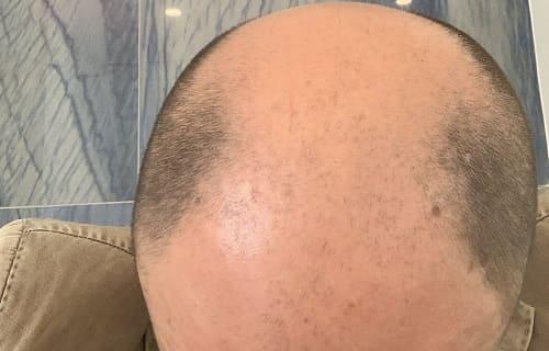 Haartransplantation mit Laser