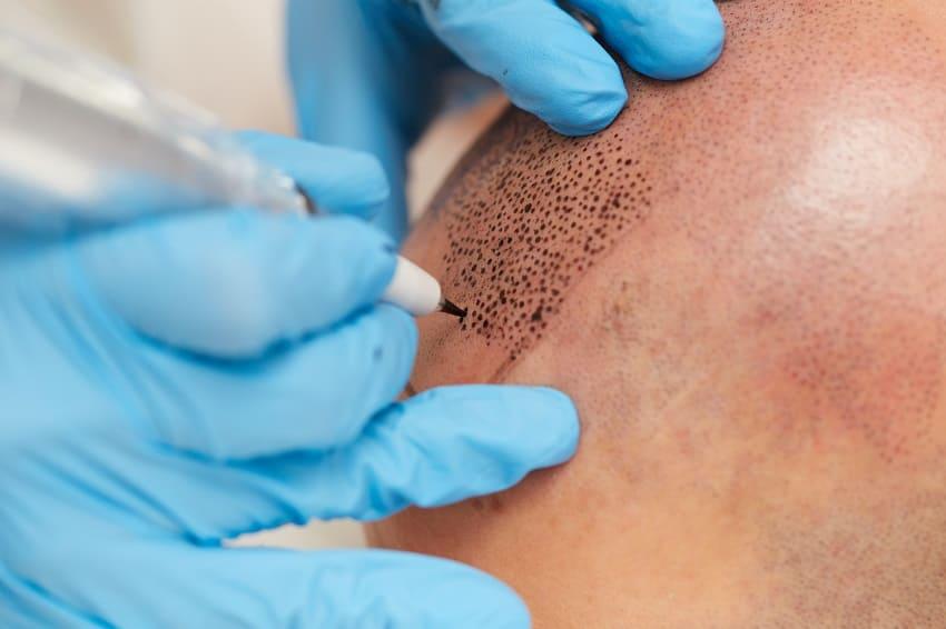 Geschichte der Haartransplantation - Haarpidmentierung