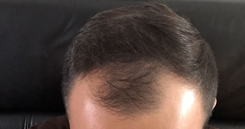 Haartransplantation Nachhaltigkeit gegen Haarausfall